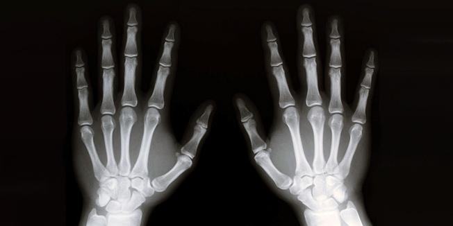 Primena x-zraka