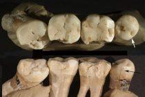 Neandertalci su koristili čačkalice u borbi protiv zubobolje?